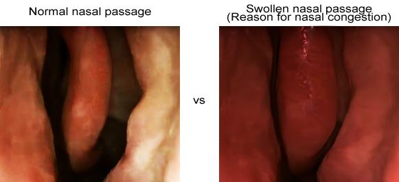 Normal vs Swollen nasal passage